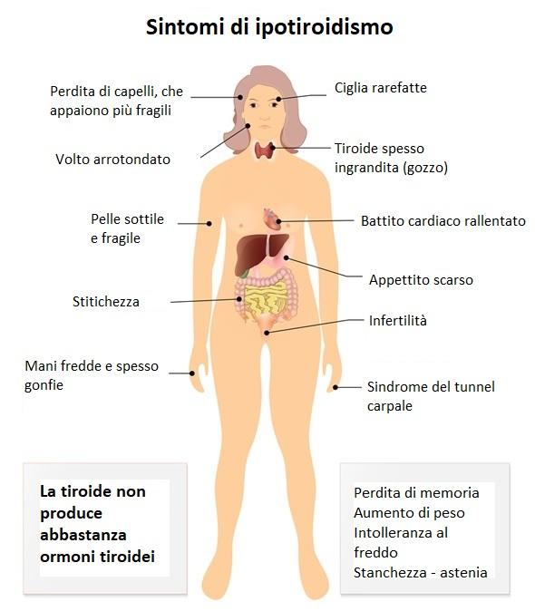 hashimoto-sintomi