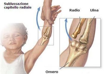 pronazione-braccio-cura
