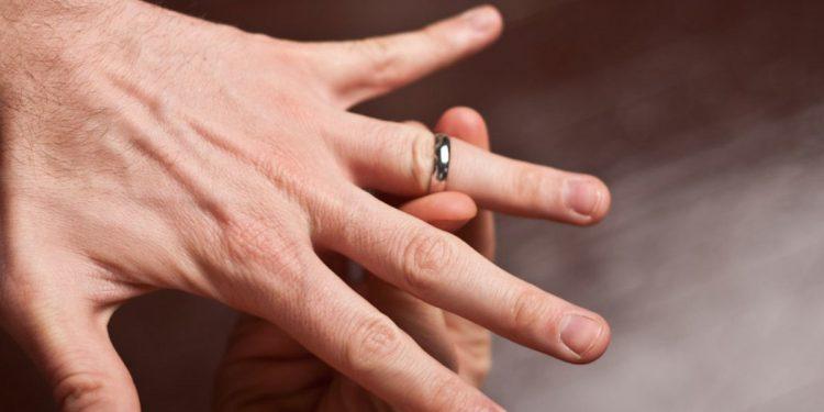 come togliere anello da dito gonfio