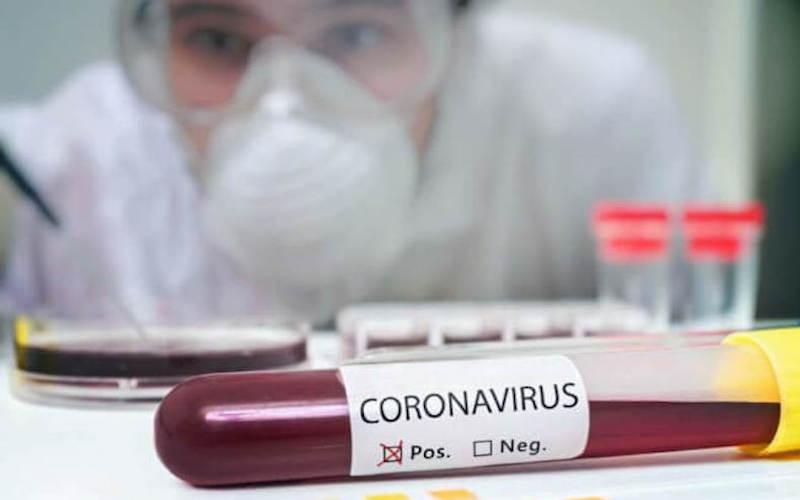 Test per Coronavirus